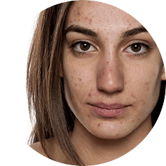 Pimples - Problems with Oily Skin